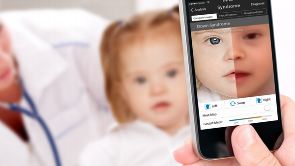 Una app que diagnostica enfermedades raras.